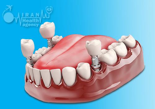 زراعة الأسنان فی مشهد
