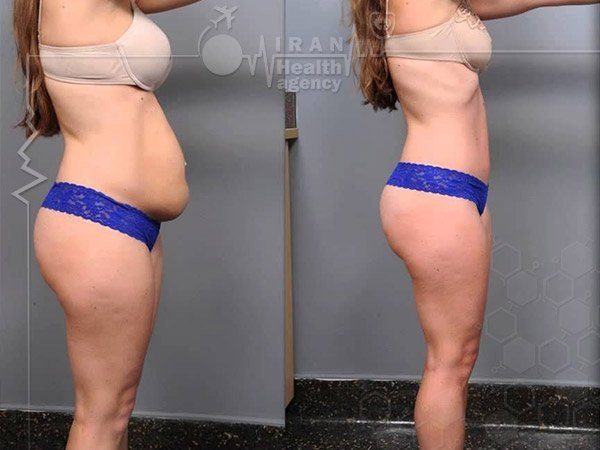 Abdominoplasty iran