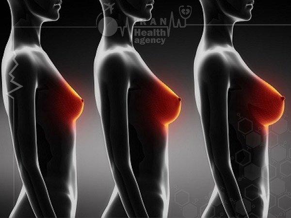 Breast implant in Iran