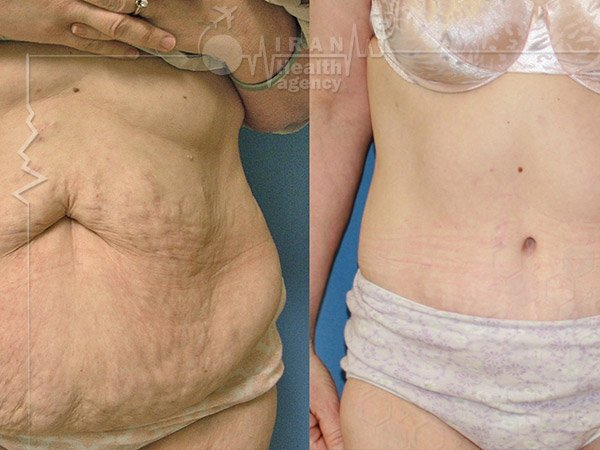 Lipoabdominoplasty in iran