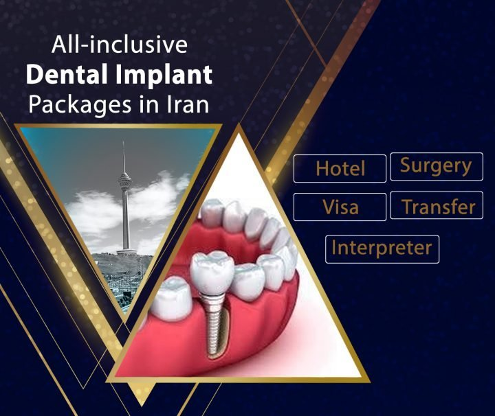 dental imolant package in iran