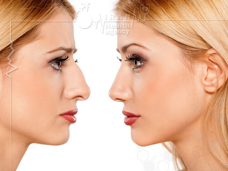 How is nose job in Iran performed?