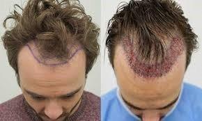 hair transplant in Tehran