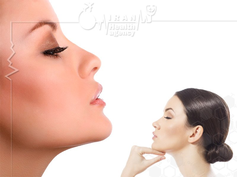 rhinoplasty in iran by iran health agency