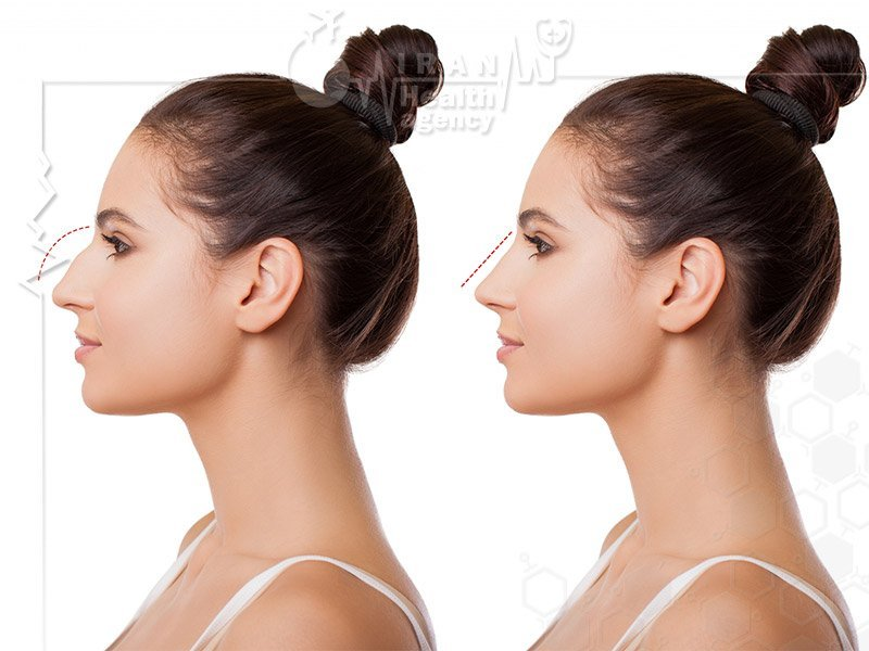 All we need to know about Rhinoplasty in Iran