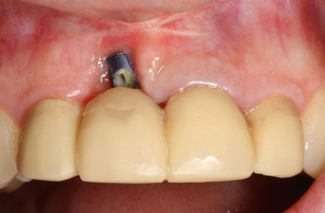 tooth implant procedure in Iran