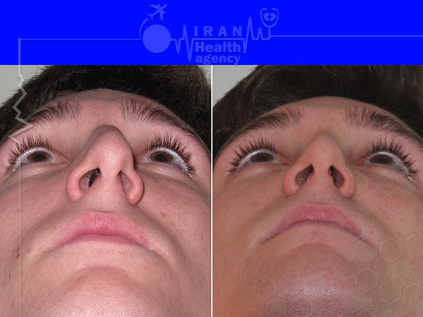 Bony nose job in iran