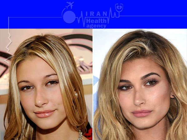 Dolly nose job before after