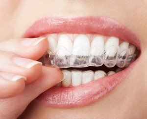 Invisalign orthodontic iran health agency