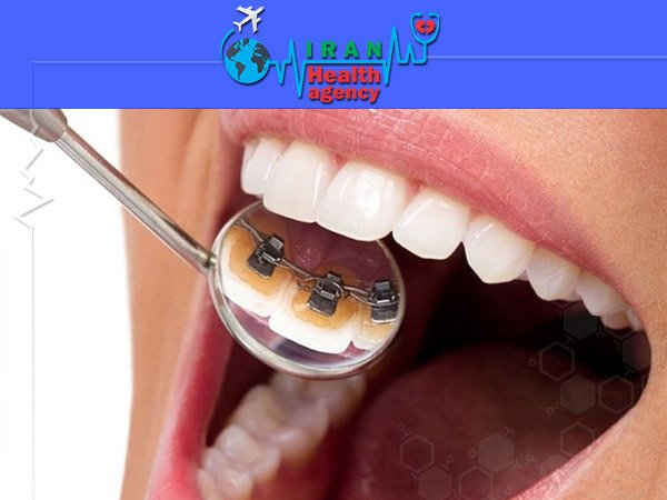 Lingual Orthodontic iran health agency