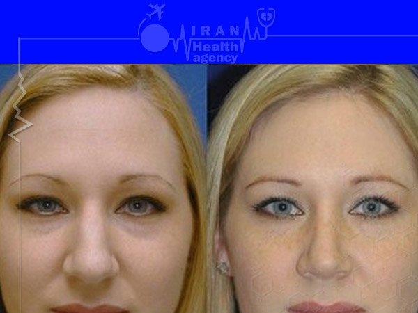 Natural nose job before after