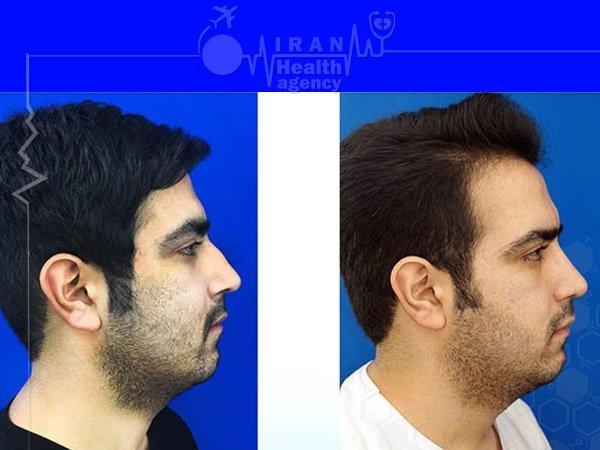 Natural nose job for man