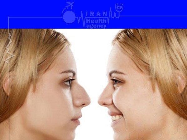 Natural nose job in iran