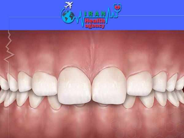 Over bite or deep bite orthodontics
