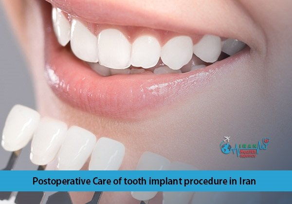 Postoperative Careoftooth implant procedure in Iran