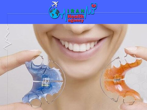 Removable Orthodontics