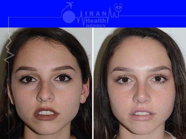 Semi fantasy nose job before after