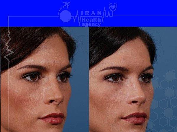Semi fantasy nose job in iran