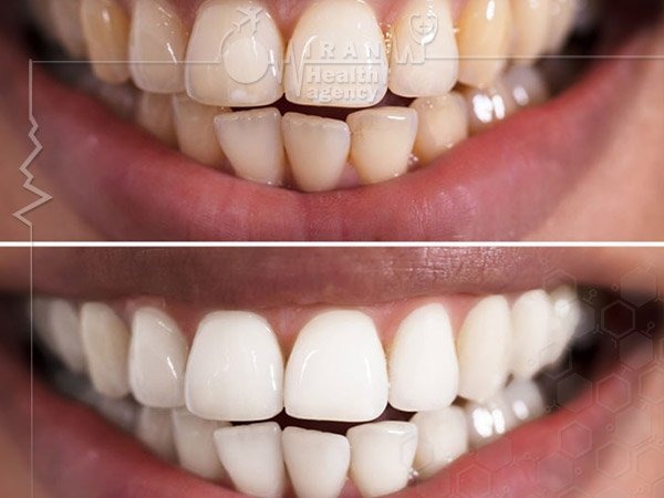 Tooth Bleaching in iran