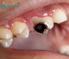 Tooth infection after root canal treatment