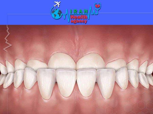 Under bite orthodontics