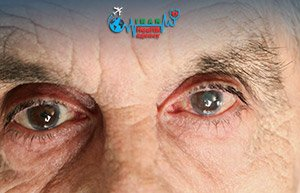 When it comes to cataract
