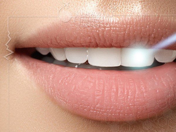 Whitening the teeth