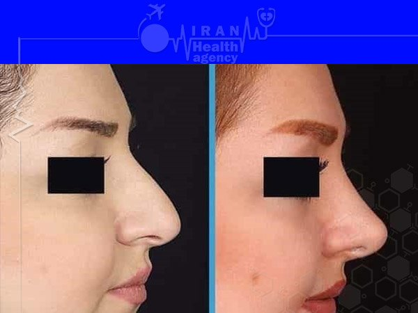 before after Natural rhinoplasty