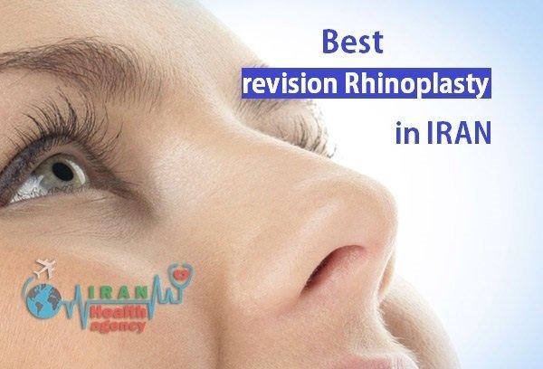 best reviseion rhinoplasty