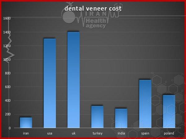dental veneer cost