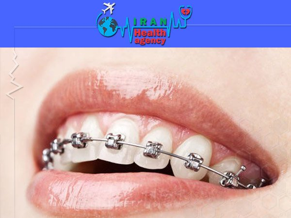 fixed orthodontic iran health agency