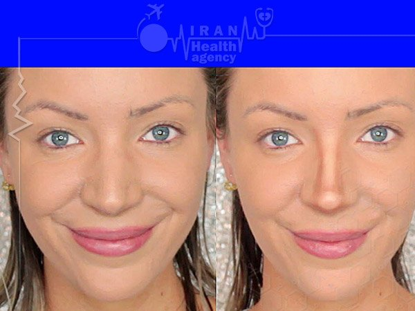 fleshy nose job before after