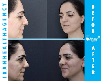 iranian nose job before and after 5
