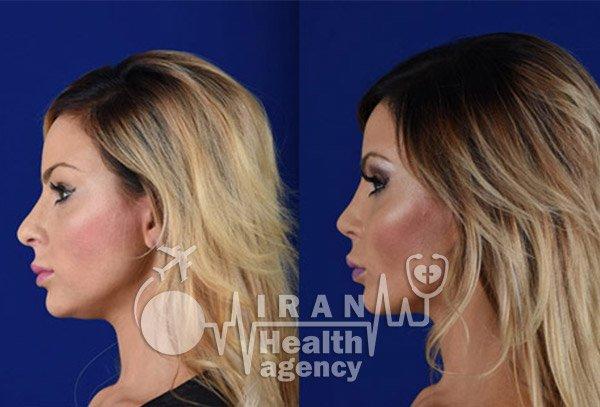 nose job in iran heallth agency