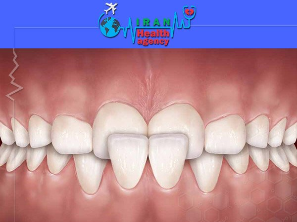 orthodontic for Cross bite