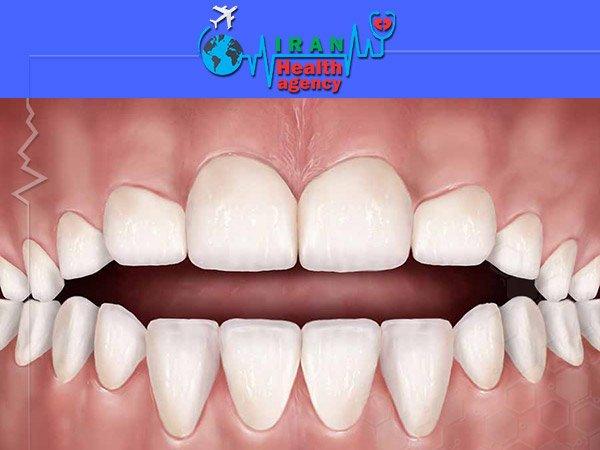 orthodontic for Open bite