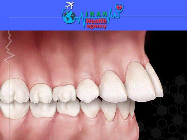 orthodontic for Overjet