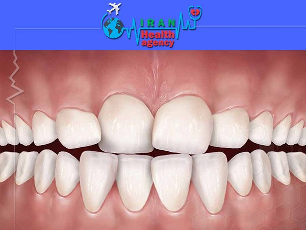 orthodontic for Teeth congestion