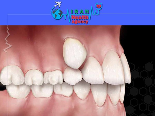 orthodontic for ectopic position