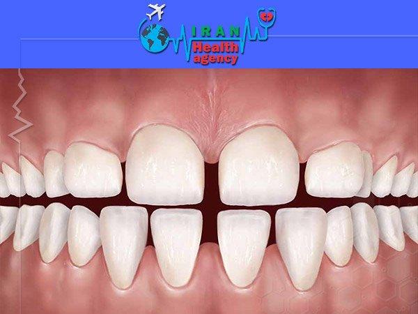 orthodontic for gap