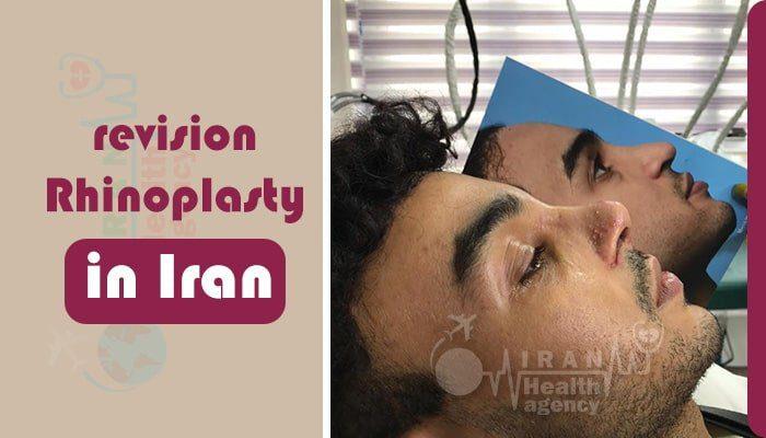revision Rhinoplasty iran
