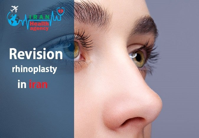revision rhinoplasty in iran