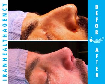 rhinoplasty before and after 1