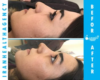 rhinoplasty in iran before and after 2