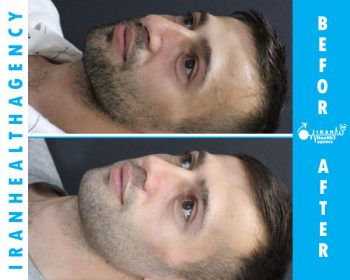 rhinoplasty in iran before and after 3