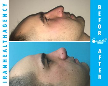 rhinoplasty in iran before and after 4
