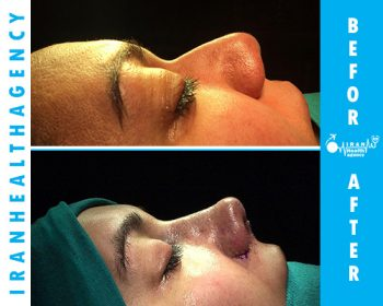 rhinoplasty in iran before and after 6