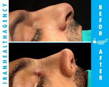 rhinoplasty iran before and after 3