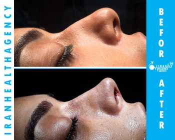 rhinoplasty iran before and after