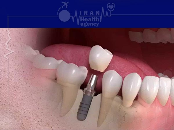 tooth implanet in iran
